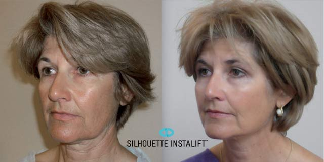 Silhouette InstaLift Before & After at A-To-Zen Regenerative Medicine in Bellevue, WA
